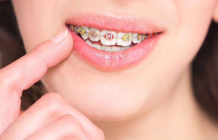 Noi vă propunem utilizarea aparatelor dentare pentru a îndrepta fără prea mult efort și în timp relativ scurt, câteva luni, dinții care vă dau bătăi de cap.