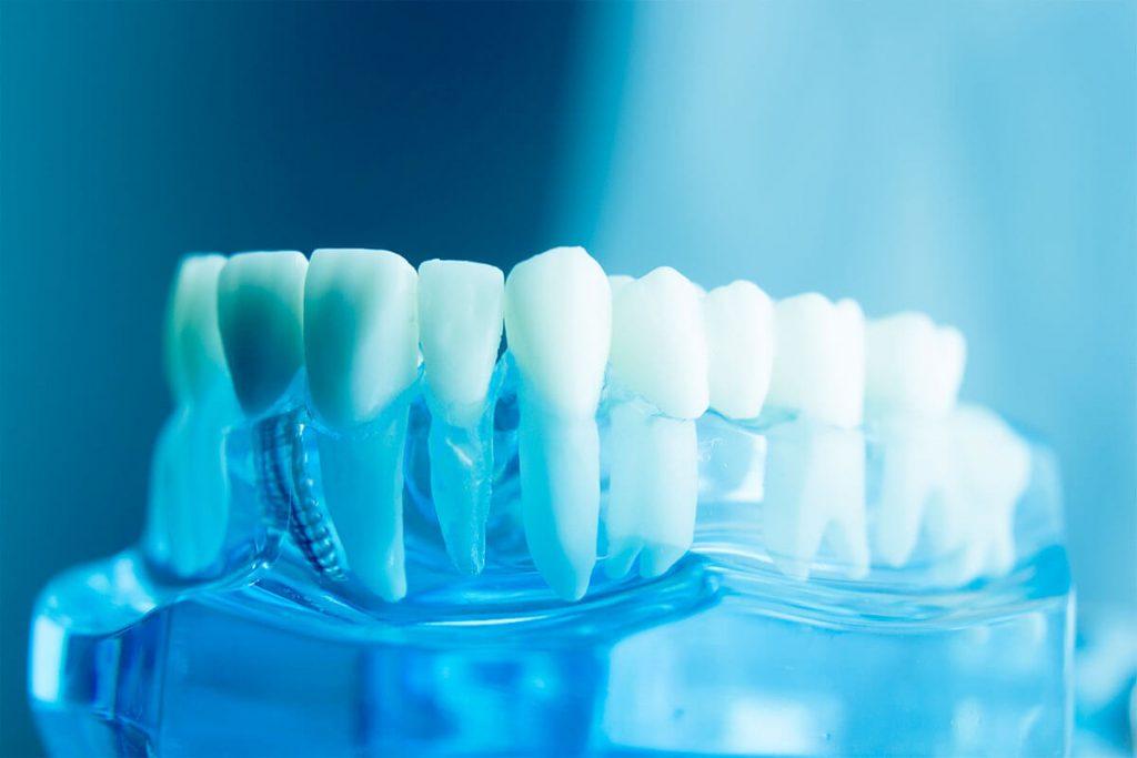 Aflați mai multe despre implanturile dinților