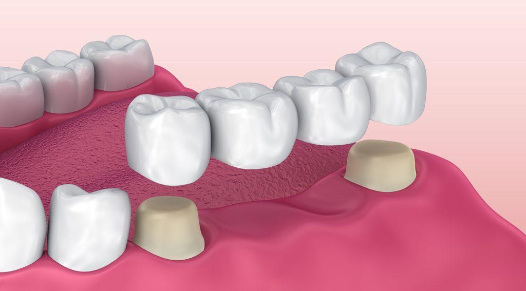 Dental Bridge Moldova