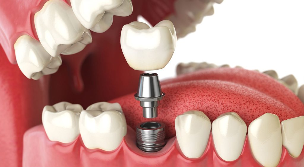 HOW MUCH ARE DENTAL IMPLANTS IN REPUBLIC OF MOLDOVA?